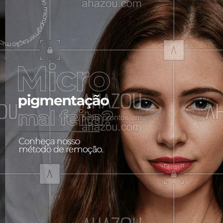 Nosso método é indolor e garante a remoção total da sua micropigmentação, entre em contato e marque a sua avaliação. #micropigmentação #AhazouBeauty #remoção #beleza