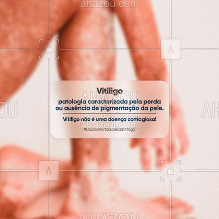 A informação quebra as barreiras do preconceito! Mantenha-se sempre informado! 01.08 - dia nacional dos portadores de vitiligo. ?? #ahazou #frasesmotivacionais #motivacionais #vitiligem #perfectskin #pele #skin #vitiligo #ahazou