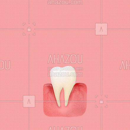 Sentiu aquela dor de dente repentina e só vai poder ir no dentista no dia seguinte? O óleo de cravo pode te salvar da do chata, por conter propriedades anti-inflamatória e antifúngica. Aplique-o sobre um pedaço de algodão ou cotonete o coloque no dente que está doendo e deixe agir por alguns minutos. #terapiascomplementares #bemestar #vivabem #saude #editaveisahz #AhazouSaude #aromaterapia #propriedades #oleosessenciais