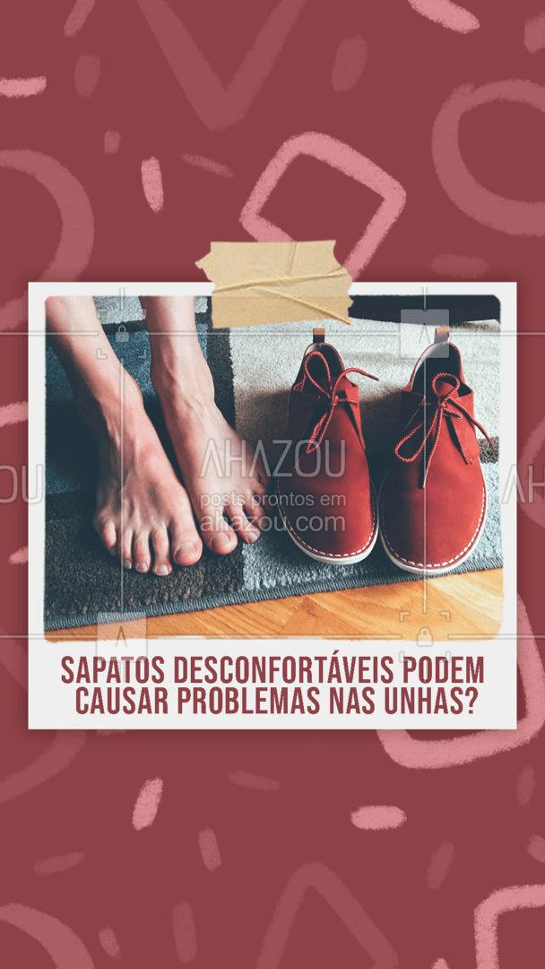 A resposta é: um grande SIM! Os sapatos apertados forçam a ponta dos dedos, causando o escurecimento das unhas, que podem até mesmo provocar inflamações por causa do atrito excessivo. Por isso, evite comprar sapatos que não sejam ideais para os seus pés! #calçados #dicas #sapatos #unhas #AhazouFashion #moda #style