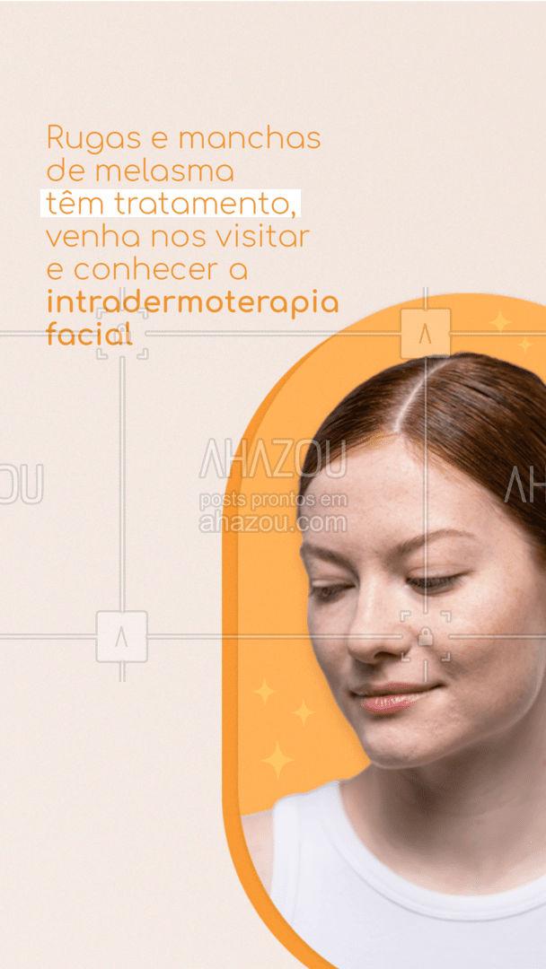 Além de tratar rugas e manchas, a intradermoterapia hidrata e deixa sua pele viçosa, venha nos visitar e conhecer um pouco desse tratamento facial que deixará sua pele impecável! #esteticafacial #AhazouBeauty #beleza #intradermoterapiafacial