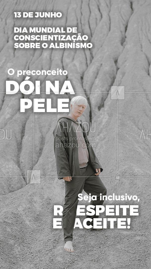 Não seja mais um do lado do preconceito, esteja do lado certo da força.  Nós apoiamos essa causa, e você? ?  #albinismo #conscientizaçãodoalbinismo #ahazou  #frasesmotivacionais #motivacional