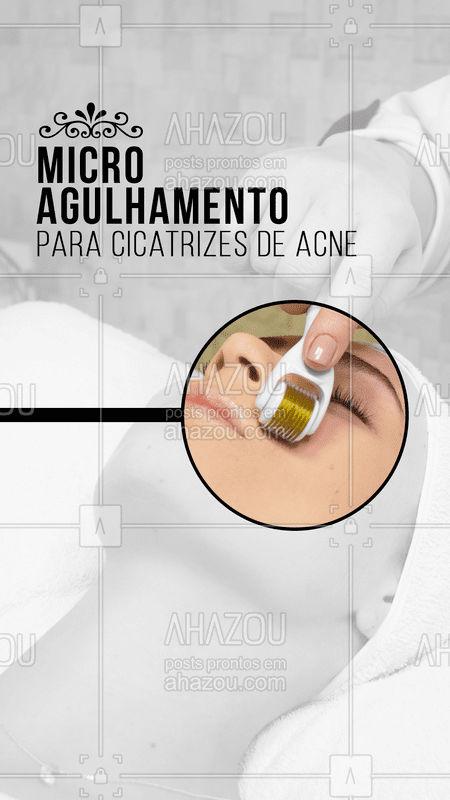 As cicatrizes de acne incomodam muito quem convive com elas. Por isso o microagulhamento é o queridinho para acabar com essas cicatrizes! O tratamento é feito através de uma estimulação natural feita com micro-agulhas que penetram na pele, ajudando na formação de novas fibras de colágeno, que dão firmeza e sustentação à pele. Com o microagulhamento, as cicatrizes ficam mais superficiais, mais estreitas e os poros mais fechados.   Está esperando o que pra conquistar sua pele dos sonhos? ?  #microagulhamento #ahazou #esteticafacial #cicatrizesacne #acne #manchas
