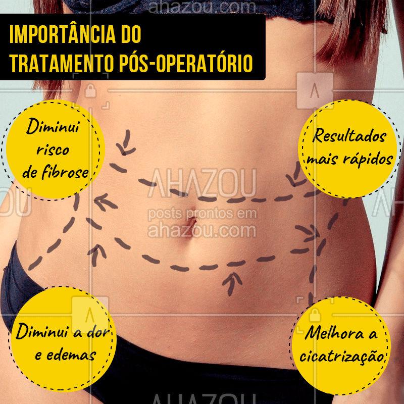 Cuidar do corpo no pós-operatório é fundamental para uma recuperação tranquila! Agende seu horário! #posoperatorio #ahazou #esteticacorporal